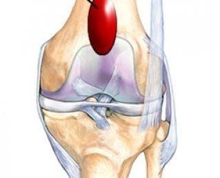 Бурсит коленного сустава симптомы и лечение