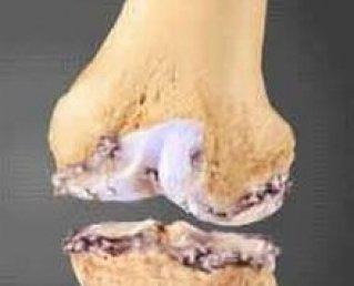 Артроз коленного сустава лечение симптомы гимнастика при артрозе колена