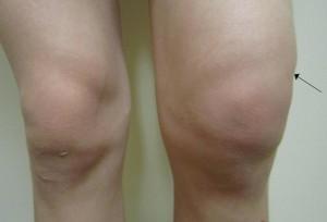 Гемартроз коленного сустава при травме, его последствия и лечение