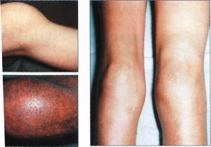 Как разрабатывать ногу при гемартрозе