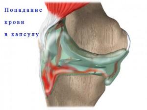 Попадание крови в капсулу при гемартрозе коленного сустава