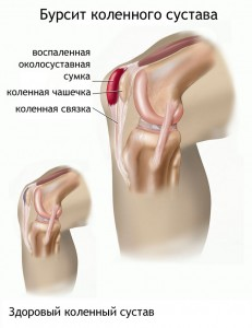 Схема бурсита коленного сустава