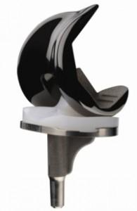 Артроз коленного сустава: причини и симптоми