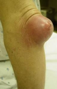 Болезни коленного сустава: краткий список и описание