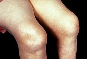 Припухлость и отек колена при артрите