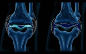 Схема артрита коленного сустава