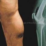 Киста Бейкера коленного сустава: причини, симптоми, размери, фото