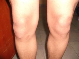 Болезнь Осгуда-Шлаттера коленного сустава: группа риска, симптоми и лечение