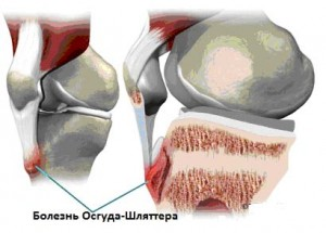 Схема возникновения болезни Осгуда-Шлаттера