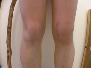 Изменения в коленном суставе при гонартрозе