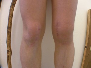 Гонартроз коленного сустава, его причини и симптоми