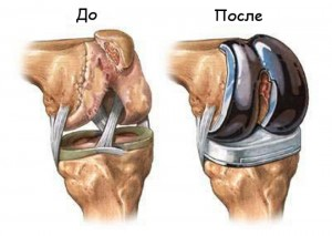 Остеоартроз коленного сустава и методи его лечения