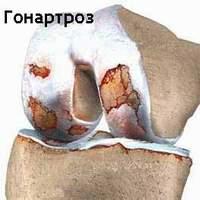 Лечение гонартроза коленного сустава: комплексние и эффективние мери