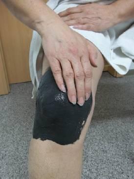 грязевые аппликации на коленные суставы и стопы