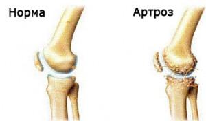 Схема остеоартроза коленного сустава