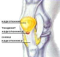 Тенденит коленного сустава