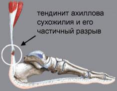 Схема тенденита колена