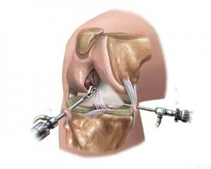 Схема производства артроскопии колена