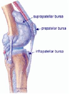 Виды бурситов коленного сустава