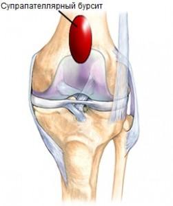 Препателлярний, инфрапателлярний и супрапателлярний  бурсити коленного сустава