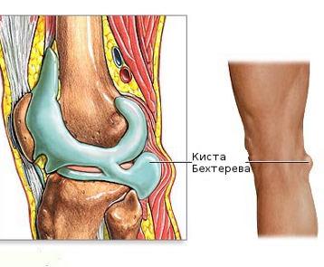 Хождение на коленях при артрозе коленного сустава