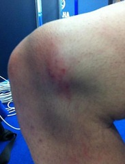 Ушиб колена: симптоми, последствия и первая помощь