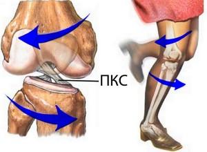 Растяжение связок коленного сустава: причини, симптоми и лечение