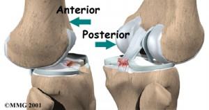 Смещение в суставе при порванной связке колена