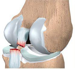 Разорванная связка коленного сустава