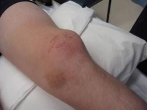 Вивих коленного сустава: види и симптоми, оказание первой помощи
