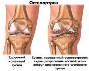 ДОА коленного сустава: причини, диагностика и лечение