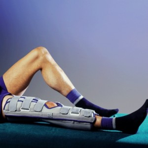 Иммобилизация коленного сустава при вывихе надколенника