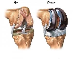 Схема эндопротезированного сустава