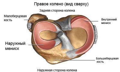 Схема менисков коленного сустава