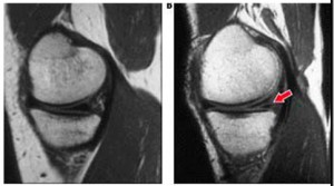 Травма мениска коленного сустава: симптоми и лечение