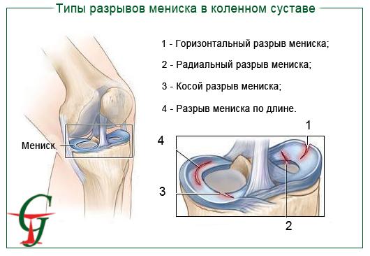 Утолщение ногтя на большом пальце ноги лечение