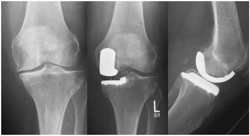Протез колена на рентгеновском фото