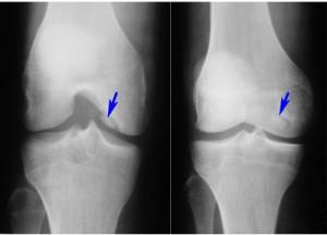 Рентгеновский снимок коленного сустава
