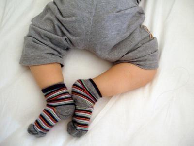 Дисплазия у детей