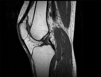 Лигаментоз коленного сустава: причини, диагностика и лечение