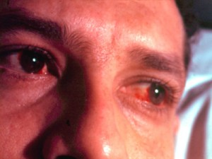 Глаза при реактивном артрите