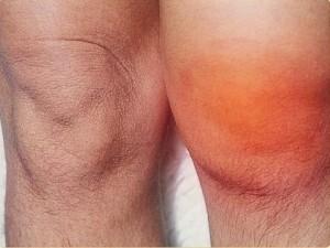 Опухоль колена при повреждении мениска