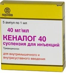 Лечение остеоартроза коленного сустава: препарати, ЛФК, хирургия