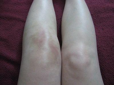 Деформация коленного сустава при полиартрите