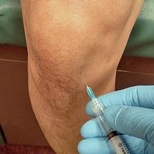 Пункция коленной жидкости при полиартрите