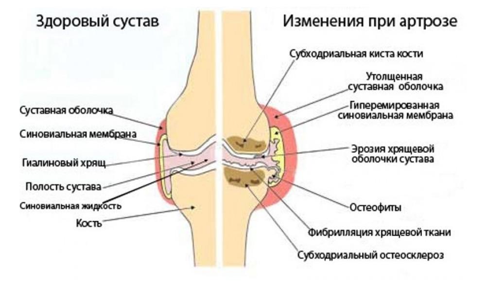 хрящи лечение суставов рецепт