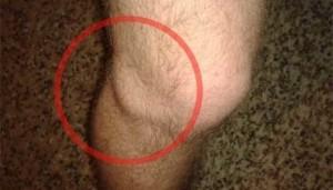 Фото колена с кистой