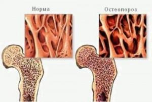 Остеопороз коленного сустава