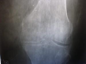 Снимок сустава с остеопорозом