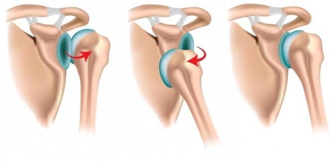 Как выскакивает коленный сустав
